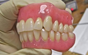 一般的な保険の入れ歯